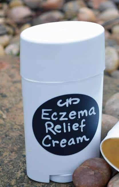 Eczema Relief Lotion Bars Recipe