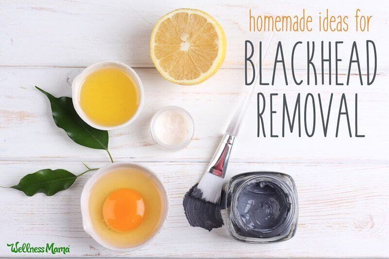 Homemade Blackhead Removal Ideas